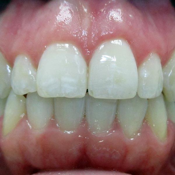 Invisalign Dentists Grand Rapids, MI